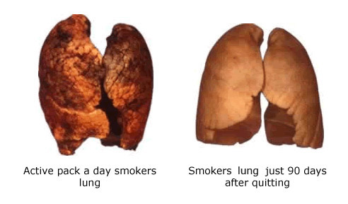 before-and-after-quitting-smoking
