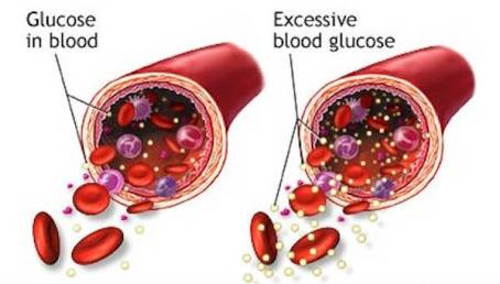 excess-sugar-in-the-blood